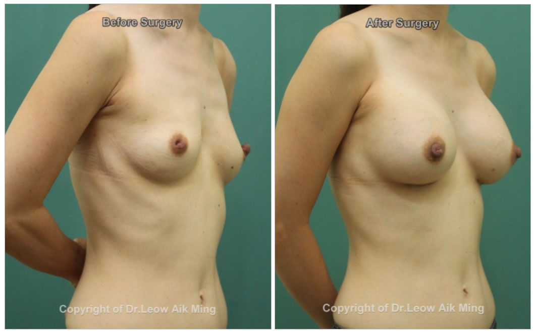 breast reconstruction surgery Malaysia