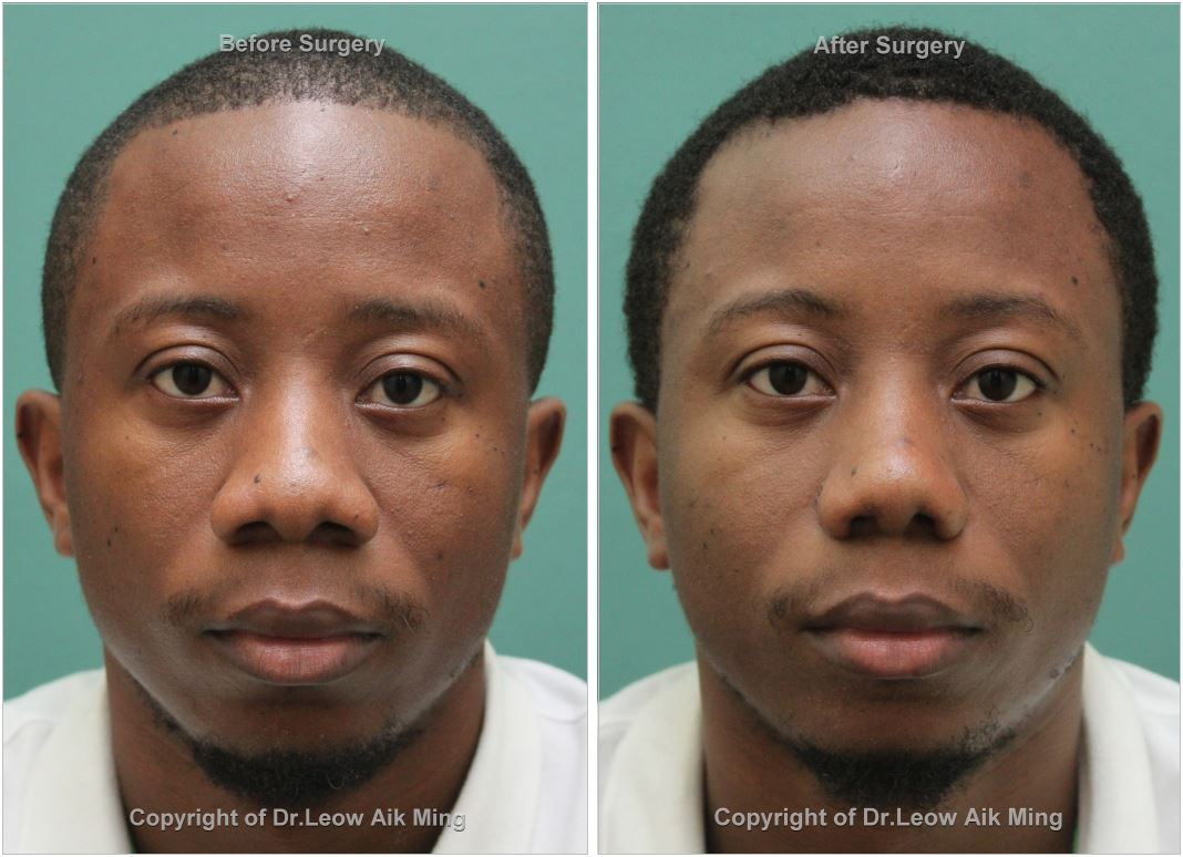 Before Alarplasty or Nostril Reduction Surgery 1