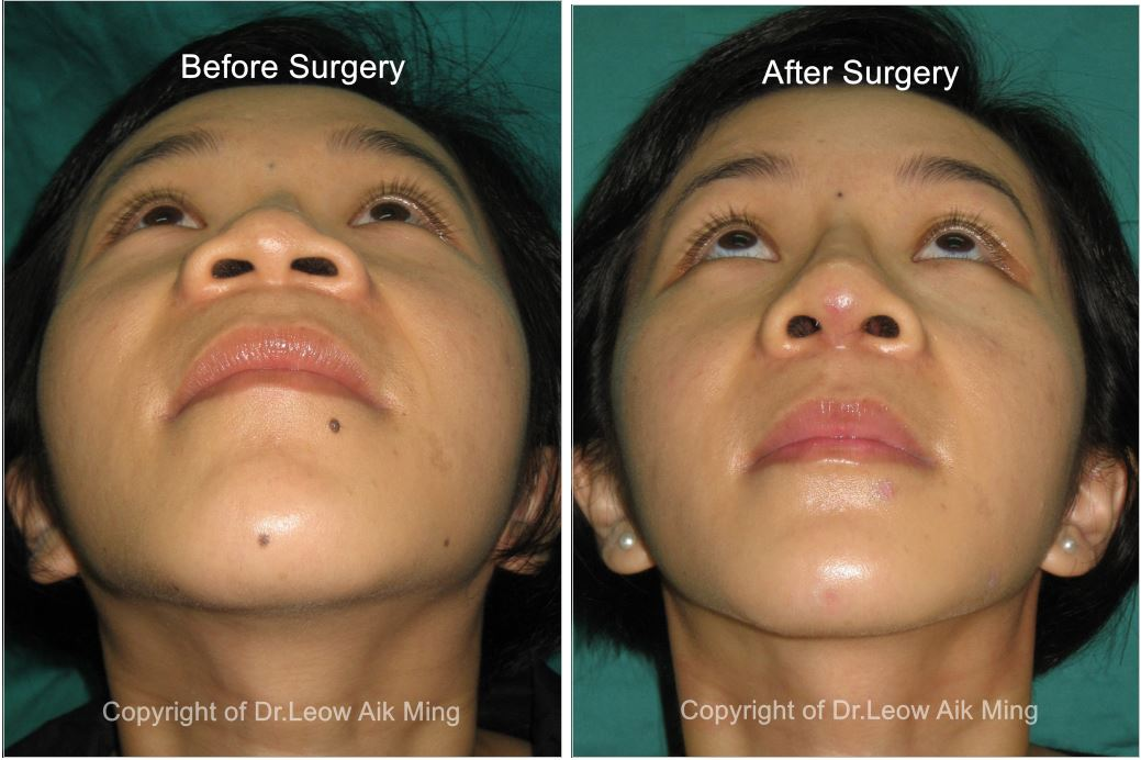 Before Alarplasty or Nostril Reduction Surgery