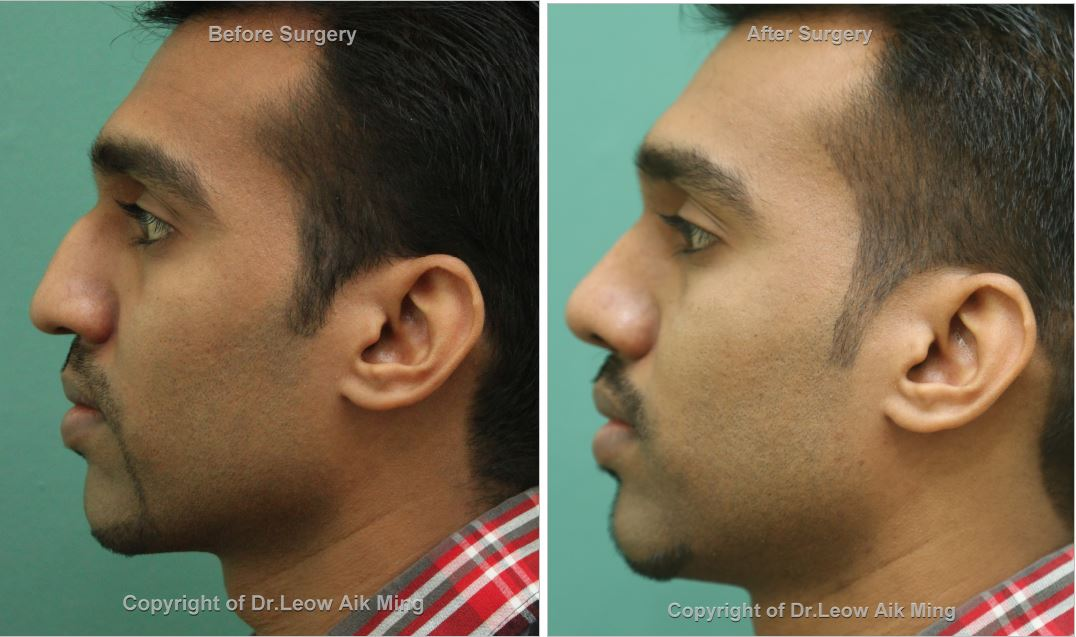 Reduction Rhinoplasty Surgery