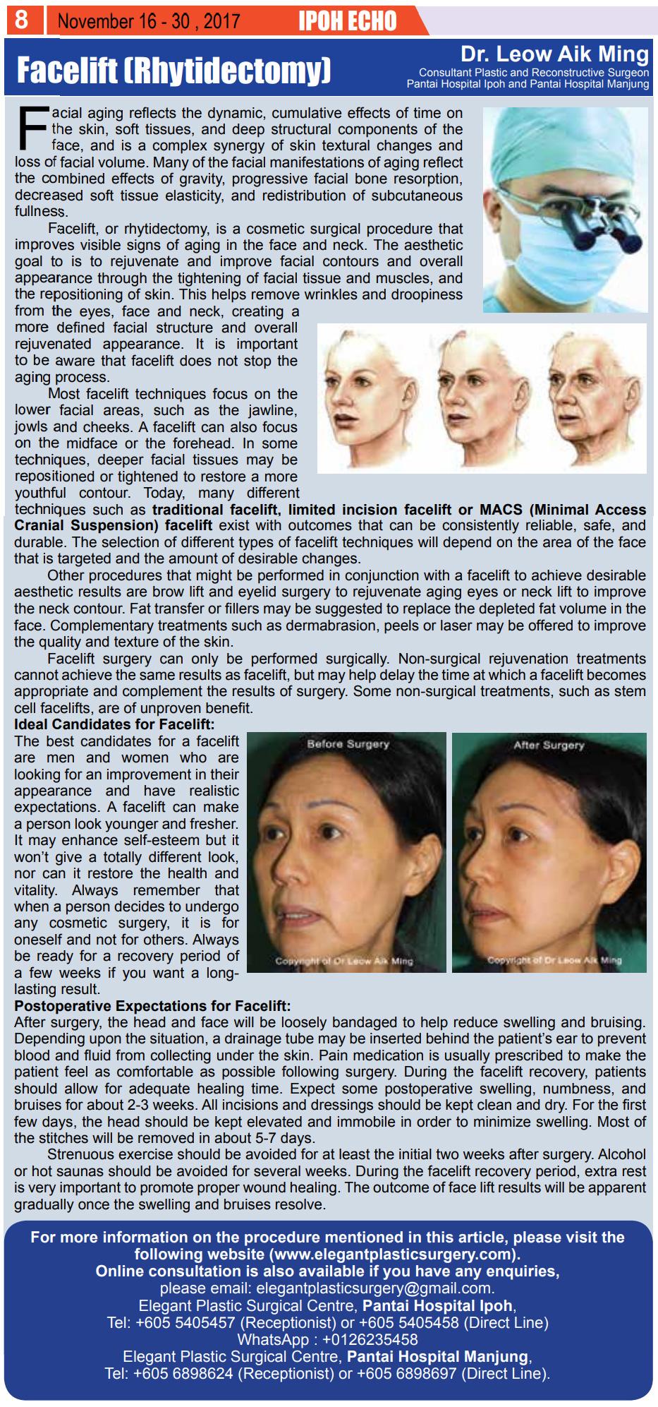Facelift-(Rhytidectomy)
